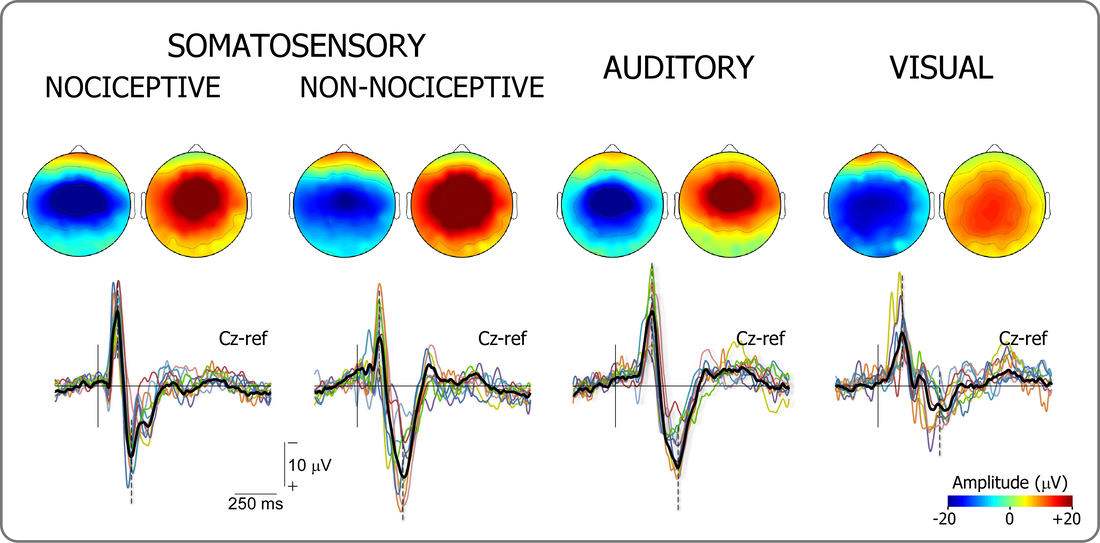 EEG responses at the scalp vertex, evoked by sudden transient stimuli of several sensory modalities